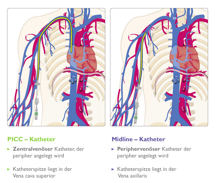Lage-Katehterspitze PICC Katheter