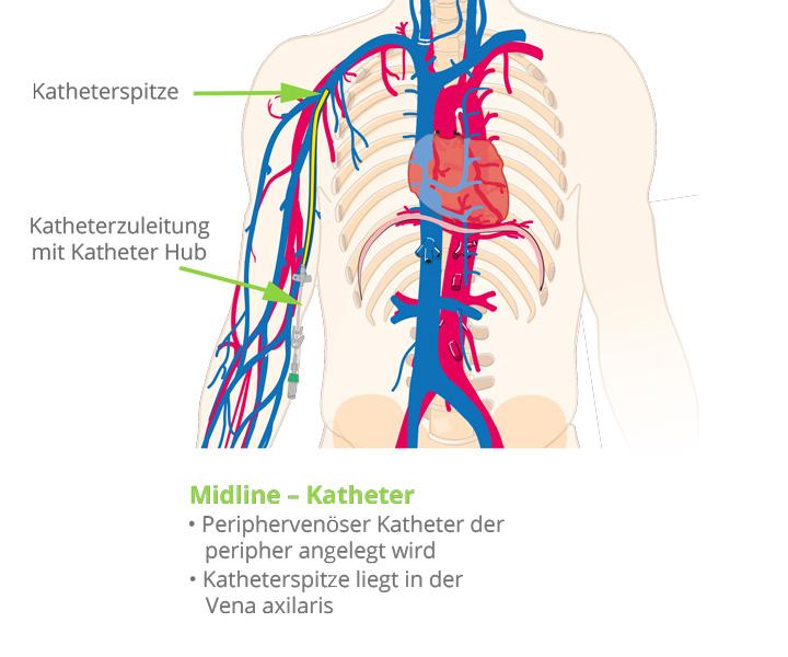 Kathetertypen-Midline-katheter