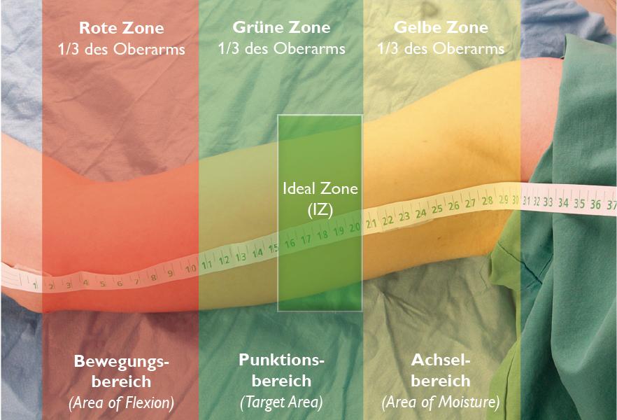 ZIM-Pic-Platzierungs-Methoden